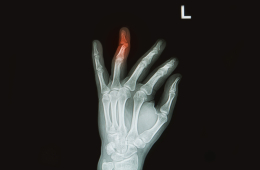 broken-finger-260x170